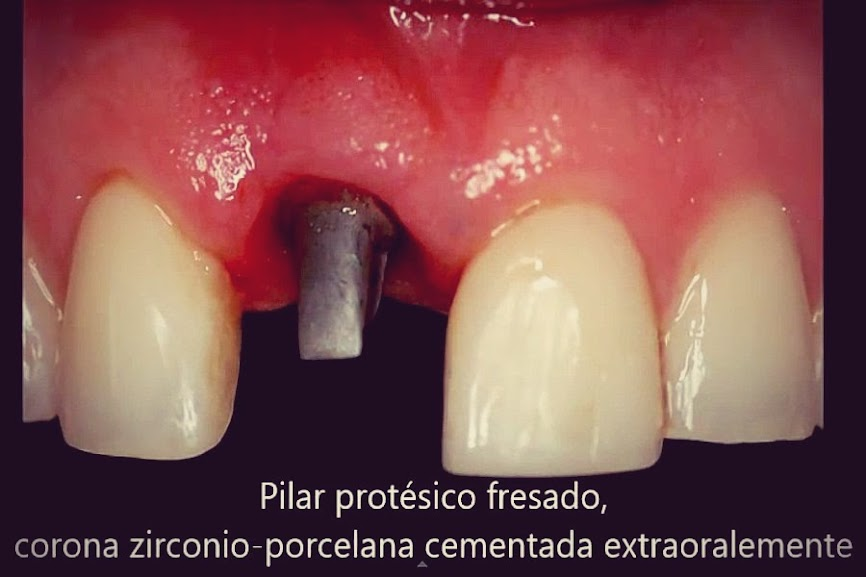 implante-dental-unitario