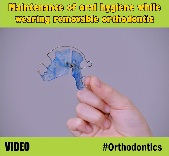 orthodontic-oral-hygiene
