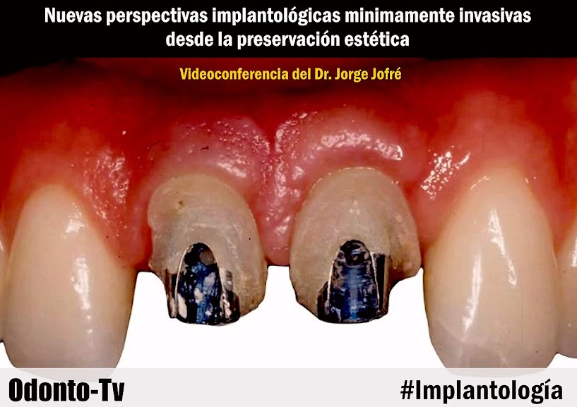 implantologia-minimamente-invasiva