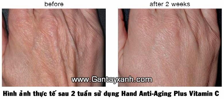 Gân tay xanh, đặc trị gân tay xanh, điều trị gân tay xanh hiệu quả, thuốc làm mờ gân tay xanh, thuốc làm giảm gân tay xanh, mỹ phẩm làm mờ gân tay xanh, mỹ phẩm đặc trị gân tay xanh, thuốc đặc trị gân tay xanh, hand anti-aging plus vitamin c, tay nổi gân xanh, kết quả sử dụng thực tế