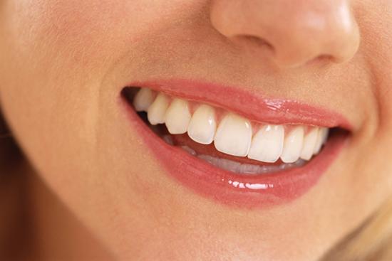Memutihkan Gigi Secara Alami tanpa Obat Pemutih