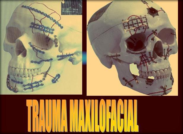 trauma-maxilofacial