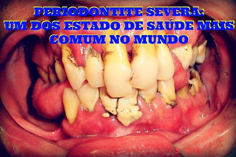periodontite-severa