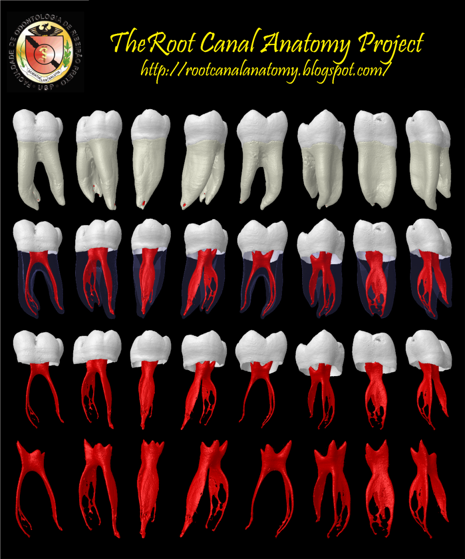 The Root Canal Anatomy Project: Mandibular First Molar