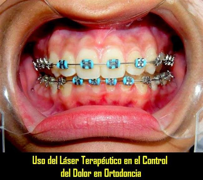 Dolor-Ortodoncia