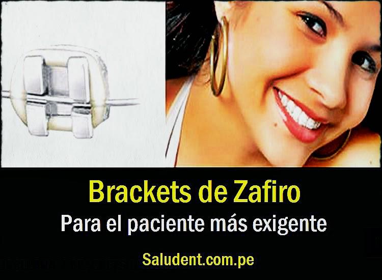brackets-zafiro
