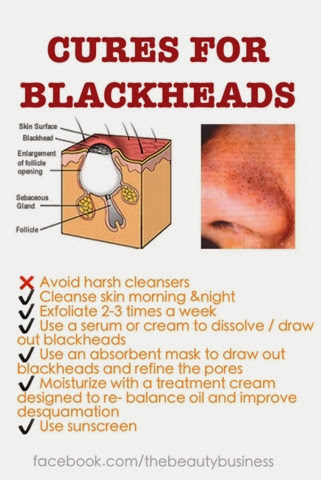 cures for blackheads