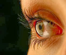 Penyebab & Pengobatan Mata Kering