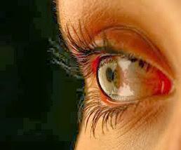 Kebiasaan Yang Bisa Merusak Mata