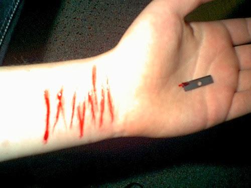 gambar-toreh-tangan-berdarah