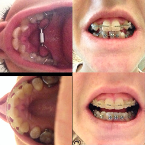 expander adults Orthodontic for