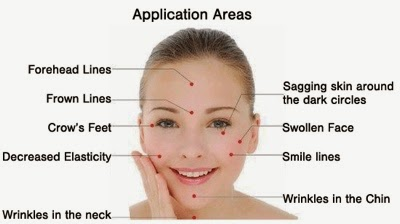 Cosmetic Acupuncture at Teceruma Spa and Salon: The Natural and Holistic Way to Defy Skin Aging + Solution to Receding Hairline & Bald Spots