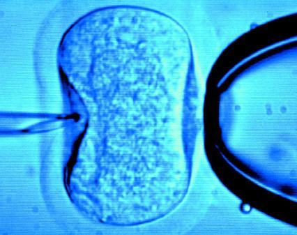 Diet as important for IVF success as fertility? Maybe