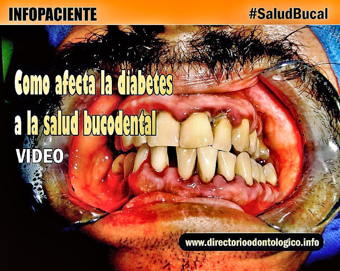 diabetes-salud-bucals