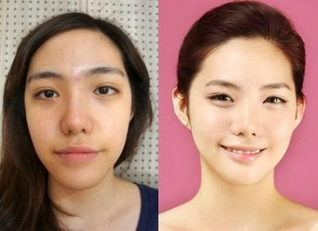The Book of Knowledge: Plastic Surgery in Korea - Before & After