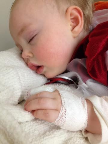 Baby Steps: First Broken Bone