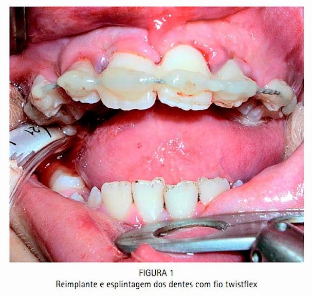reimplante-dentario