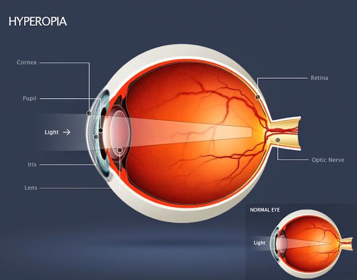 Herbal Mata Rabun Dekat atau Hipermetropia