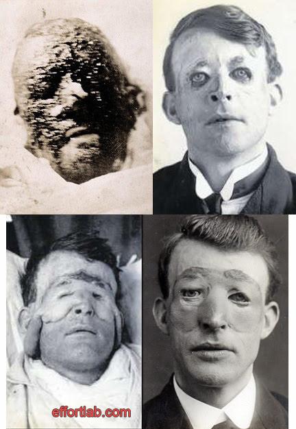 walter-yeo-face-transplant