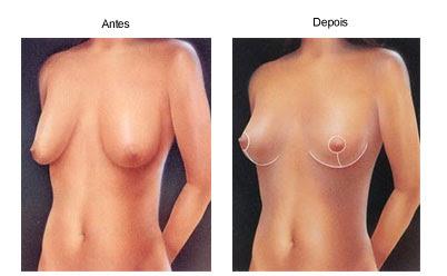 mamoplastia redutora foto