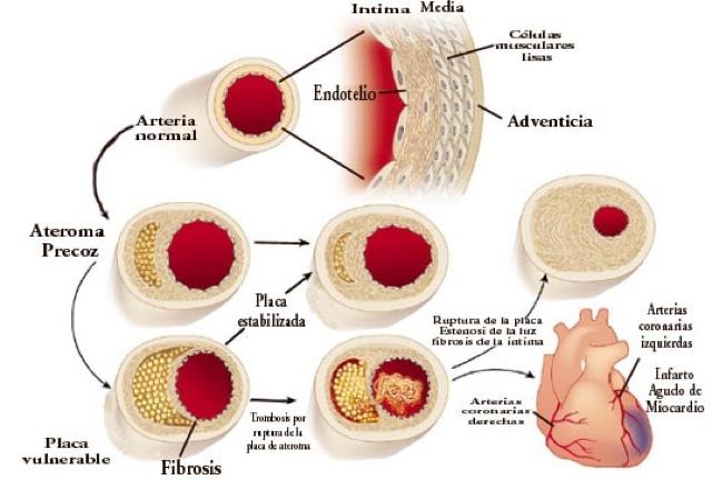 Ateroesclerosis: Generalidades de la Aterosclerosis
