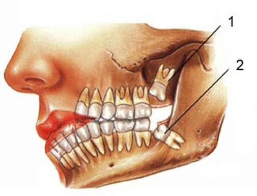 სიბრძნის კბილი