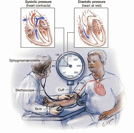 Gejala Penyakit Hipertensi