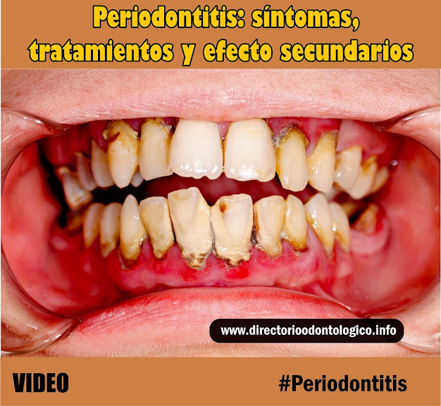periodontitis-tratamiento