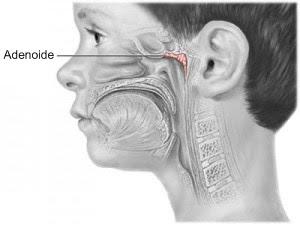 adenoide