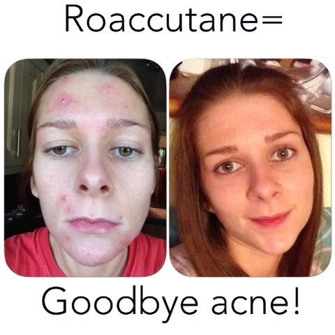 Isotretinoin or Accutane: Greatly Overused Acne Drug