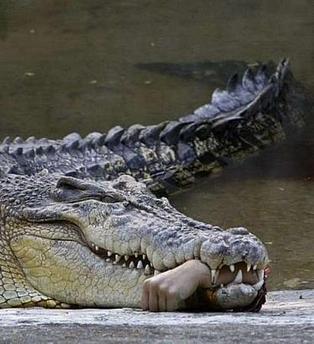 crocodile bitten hand wound