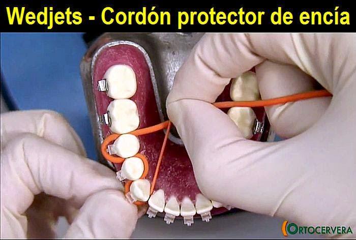 cordon-protector