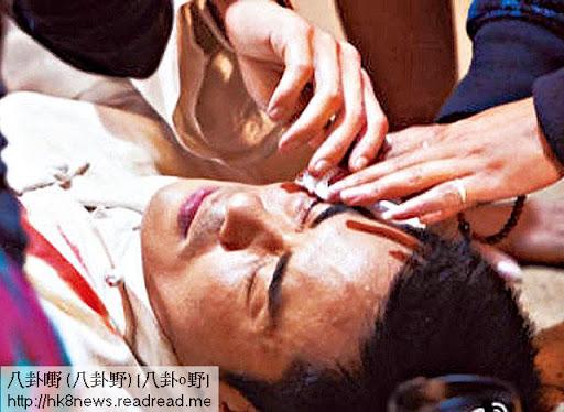 上月 25日,鄭嘉穎在崑山片場,被武指打爆眼,要即時瞓低止血。