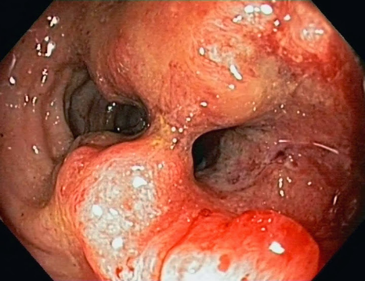 metastatic colorectal cancer treatment guidelines
