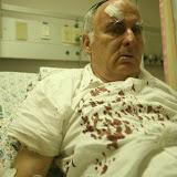 2010.09.29 (תמונות מפורשות) מאיר אינדור אחר מתקפה בא-טור – קרדיט (חוץ מהקטן): מרים צחי