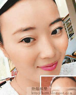 劉女士上載照片表示用面膜後過敏臉腫。(互聯網圖片)