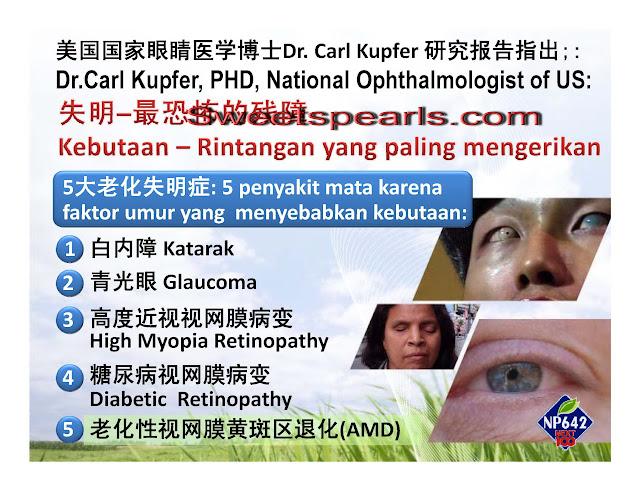 super lutein (s.lutena) untuk kerusakan retina