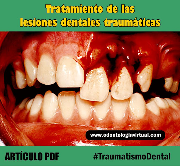 traumatismo-dental-tratamiento