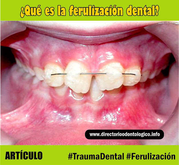 ferulización-dental