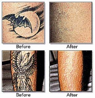 Tattoo Removal Cost Guide