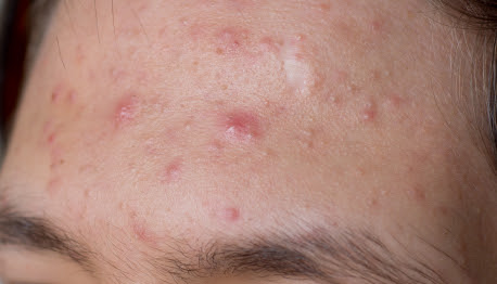 Treatment For Acne Photo - LocateADoc.com