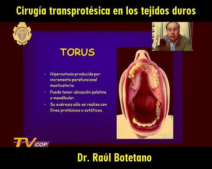 Cirugia-transprotesica