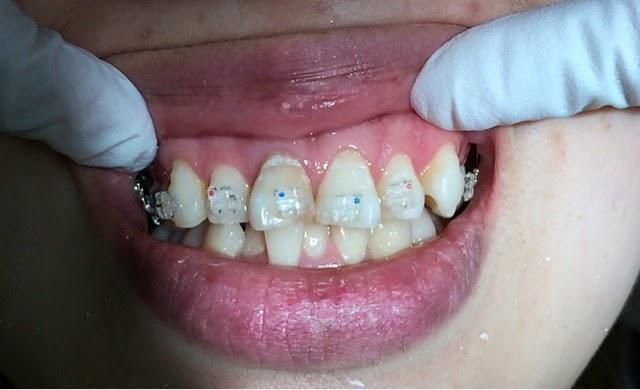 ブログ 歯 列 矯正