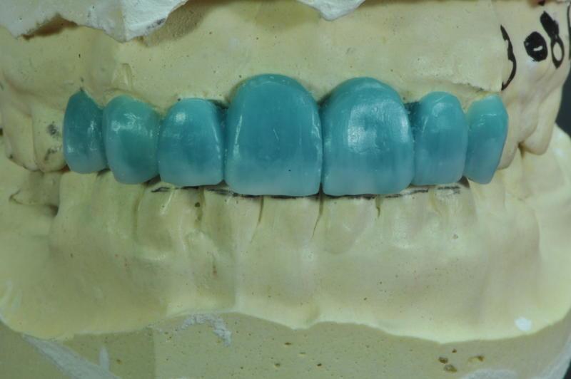 Upper Anterior Teeth حالة مريض DSC_1942.jpg