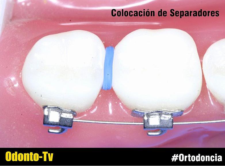 separadores-ortodoncia