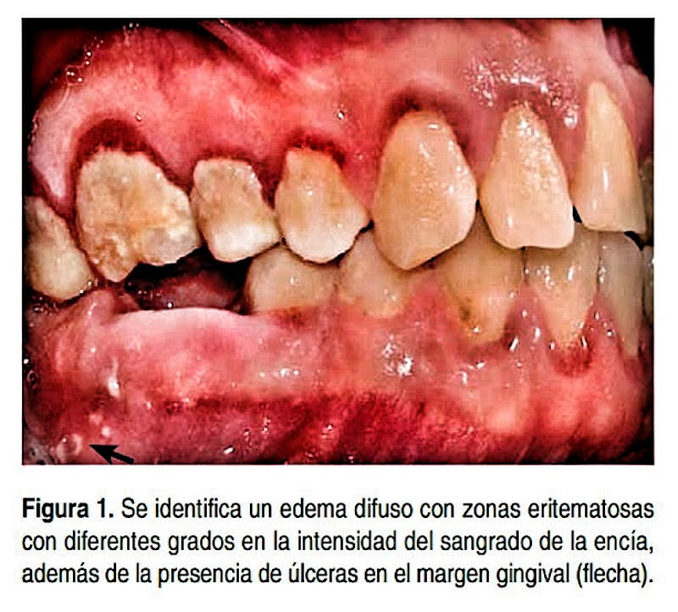 Gingivoestomatitis-Herpetica