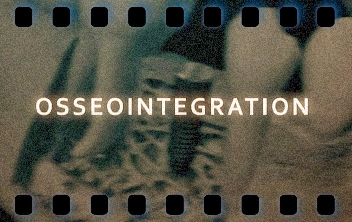 osseointegration-implantology
