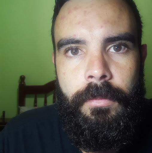 Henrique Martins Photo 23