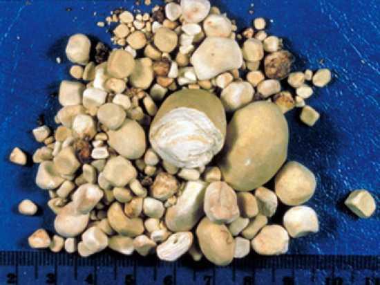 6 - Excesso de pedras nos rins
