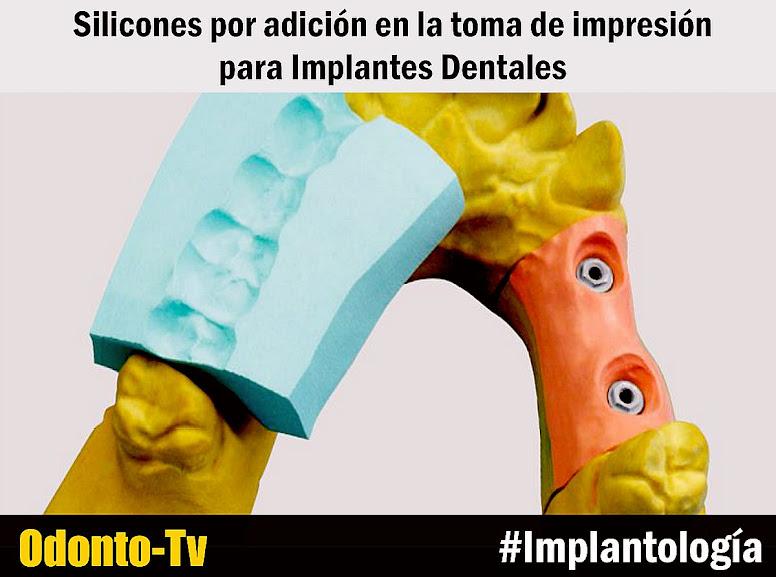 impresion-implantes-dentales